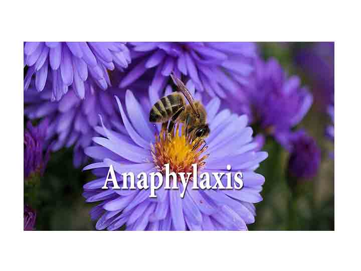 Anaphylaxis FAQ